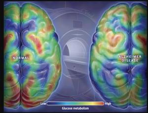 Alzheimer's Disease is surging